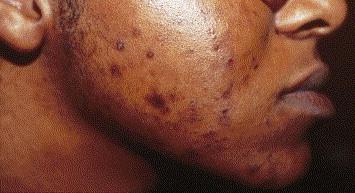 Tache d'acné